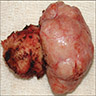 Fronto-ethmoidal osteoma