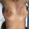Resolved infection after DEC therapy