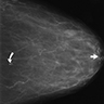 Unusual groupings of benign appearing calcifications