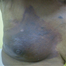 Right breast lump with pigmentation