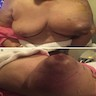Swollen breast