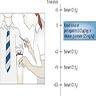 Calcium stimulation test