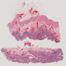 Ulcerative colitis resection