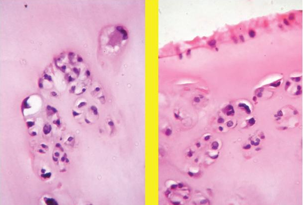 Moderate atypia of chondrocytes