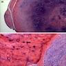 Nodule of cartilage