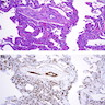 (A)small veins demonstrate marked myointimal thickening; adjacent alveolar septa are<br>thickened by endothelial cell proliferation of pulmonary capillary hemangiomatosis;<br>(B) CD31 highlights endothelial cell proliferation