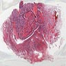 Mucoepidermoid carcinoma of the lung, from Juan Rosai's Collection of Surgical Pathology Seminars