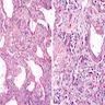 Type II pneumocyte hyperplasia