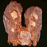 Pleural plaque