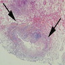 Bronchocentric granulomatosis in asthma patient