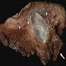 Large bronchocele (Figure 4)