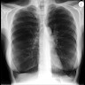 Case of alpha-1-antitrypsin deficiency