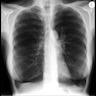 Case of alpha-1-antitrypsin deficiency