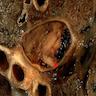 Thromboemboli in pulmonary artery