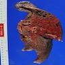 Lobar pneumonia - various images