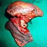 Tumor in middle lobe bronchus