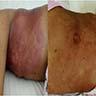 Skin involvement