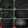 In situ mutation detection of KRAS mutation