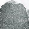 Fibromatous stromal component
