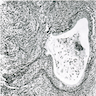 Mucinous epithelium