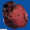 Infarcted tumor