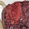 Intraplacental tumor