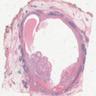Low grade mucoepidermoid carcinoma