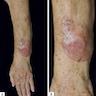Forearm lesion