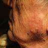 Mandible lesion
