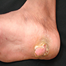 Skin colored, pedunculated firm nodule protruding from right heel toward sole