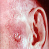 Irregular polypoid tumors