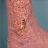 Multiple irregular nodules