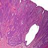 Eccrine syringofibroadenoma (Mascaro)