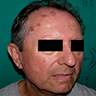 Plaques on the forehead and cheek