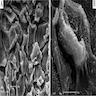 Loose keratinocytes, pemphigus
