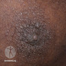 Areolar papules