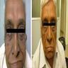 Eyelid, malar area, ear lobe