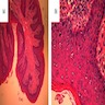 Epidermis with hyperkeratosis