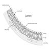 Arterial wall