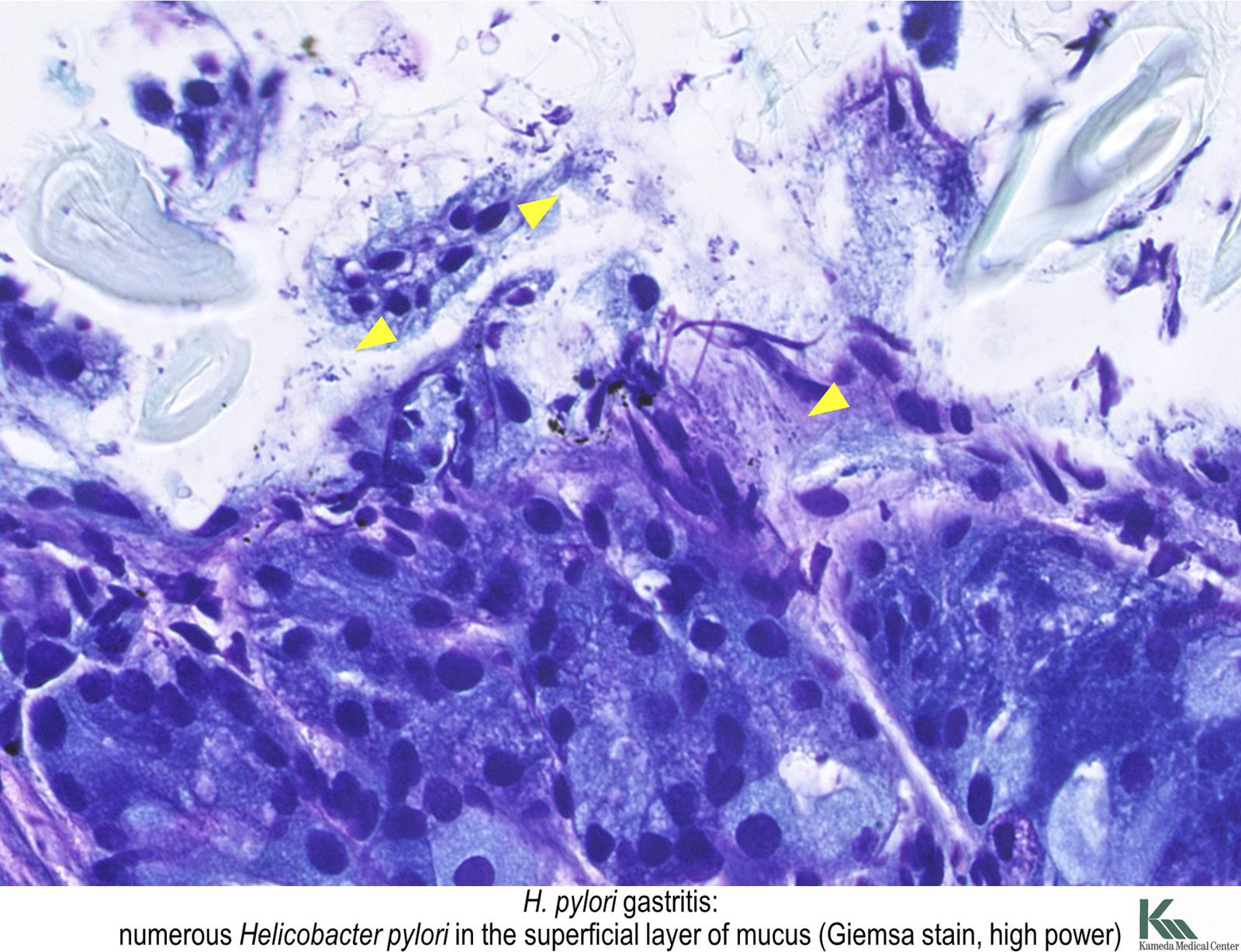 giardiasis pathology outlines