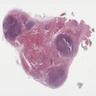 Thyroid LCH