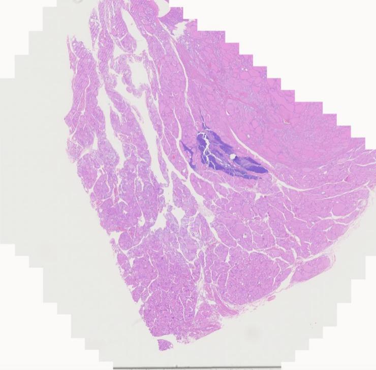 pathology outlines thymic tissue within thyroid gland