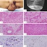 Vulvar angiomyofibroblastoma: MRI