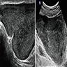 Ultrasound and MRI