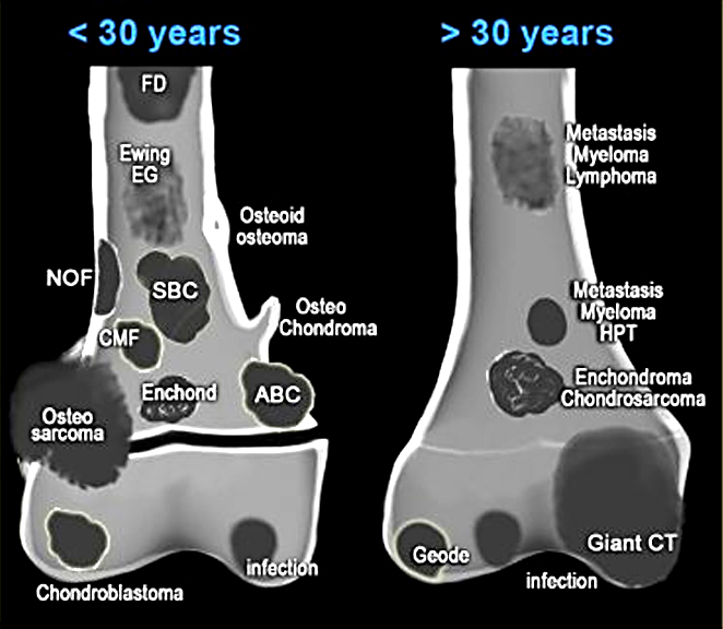 Pathology Outlines  Bone forming tumors  general