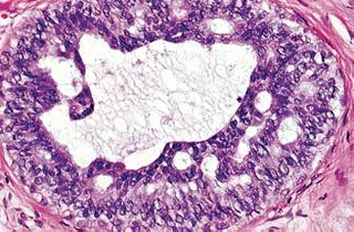 Atypical lobular hyperplasia breast excision