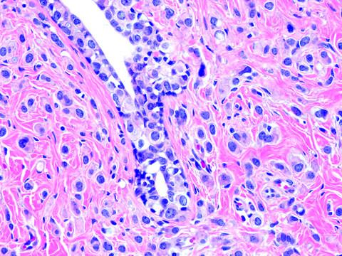 Pathology Outlines Lobular Carcinoma Pleomorphic Variant