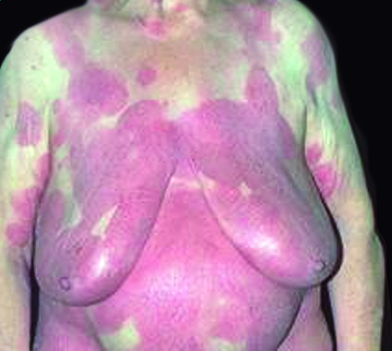mycosis fungoides breast