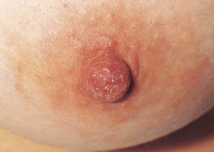 disease breast to pagets compare normal