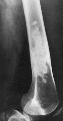 Enchondroma Femur Xray